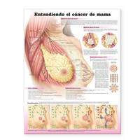 Understanding Breast Cancer Anatomical Chart in Spanish (Entendiendo